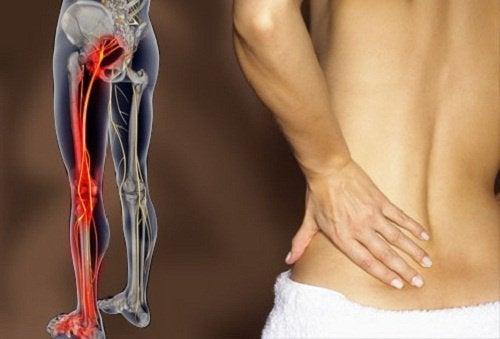 Ból nerwu kulszowego: jak się go pozbyć?