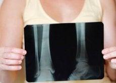 Menopauza a kości kobiety