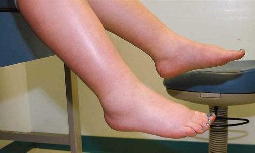 opuchnięte nogi