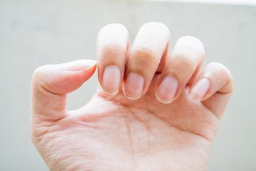 Obgryzione paznokcie