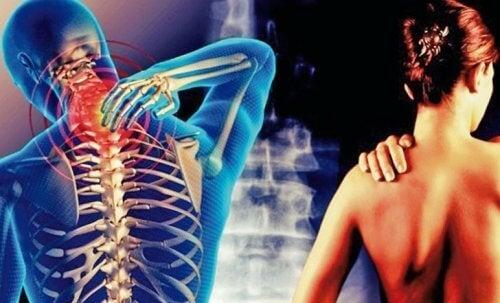 Zespół szyjno-barkowy – ból promieniujący do ramion