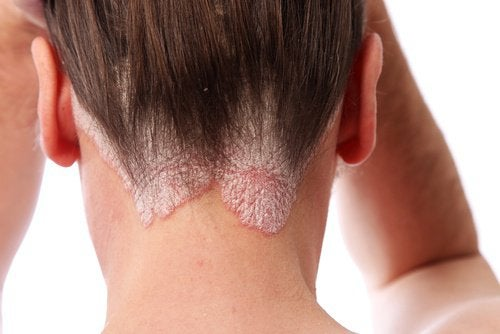 Łuszczyca skóry głowy – 6 domowych kuracji