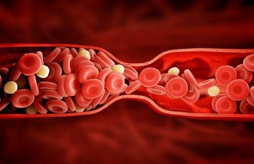 Zły cholesterol - nowa metoda leczenia!
