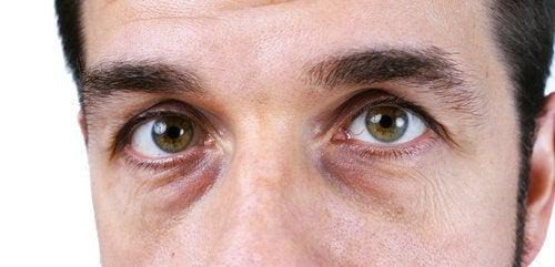 Cienie pod oczami – 4 naturalne rozwiązania