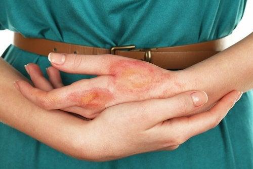 Infekcja skóry dłoni