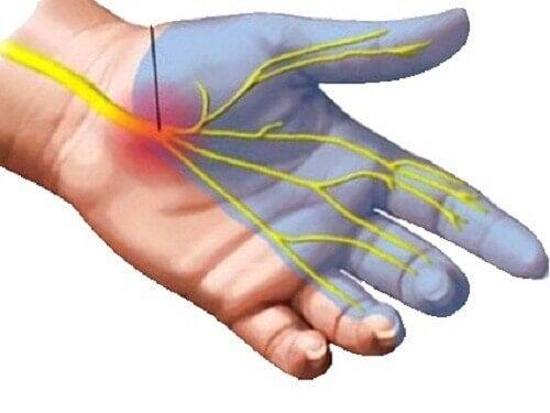 Ból nadgarstka – 7 sposobów na jego uśmierzenie