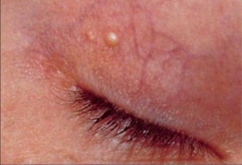 grudki wokół oczu