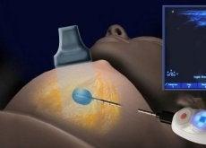 krioablacja rak piersi
