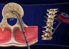 Leczenie bólu pleców