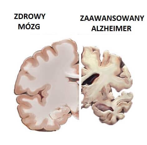 mozg-choroba-alzheimera