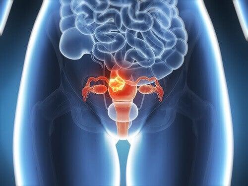 Rak szyjki macicy – 6 symptomów, które warto znać