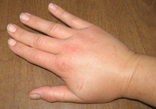spuchnięte dłonie