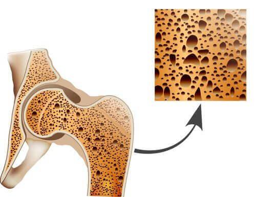 struktura kości