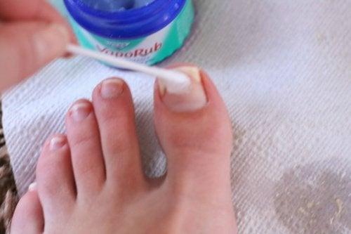 Vaporub na grzybicę paznokci