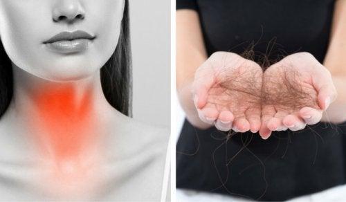 Wypadanie włosów a zaburzenia tarczycy – 8 kroków