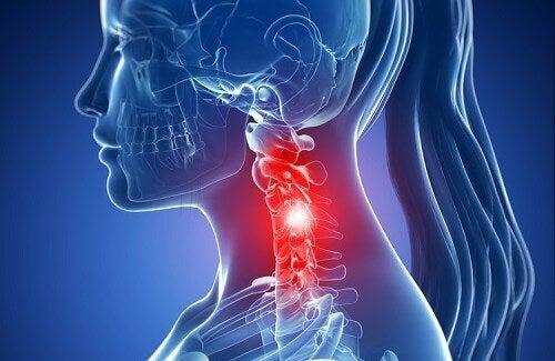 Kręgosłup szyjny - zmiany zwyrodnieniowe i ich leczenie