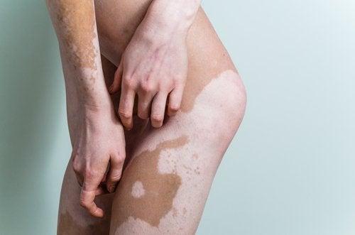 bielactwo na nogach