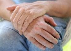 Bielactwo na dłoniach