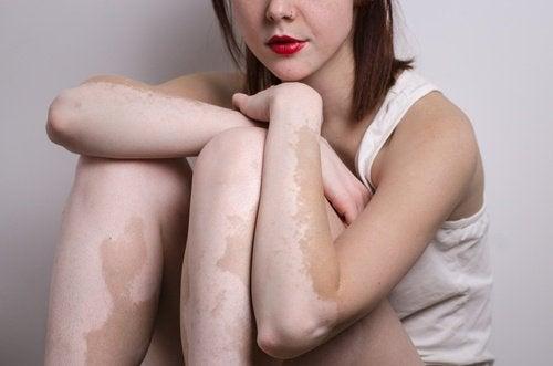 Kobieta - bielactwo