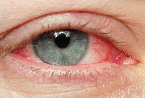 odwodnienie zaczerwienine oczy