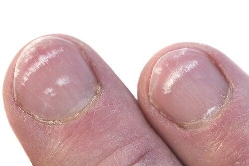 paznokcie z białymi wykwitami