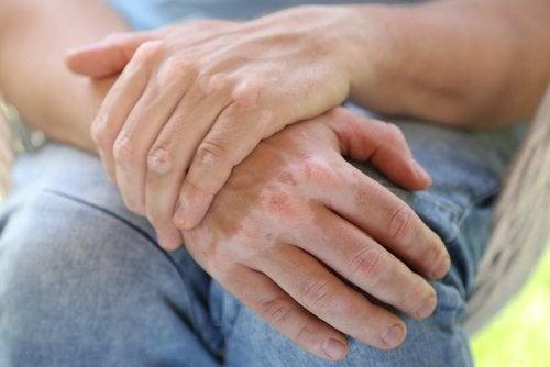 ręce bielactwo
