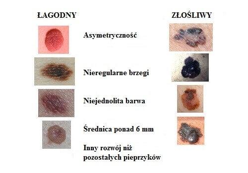 Rak skóry - pieprzyki