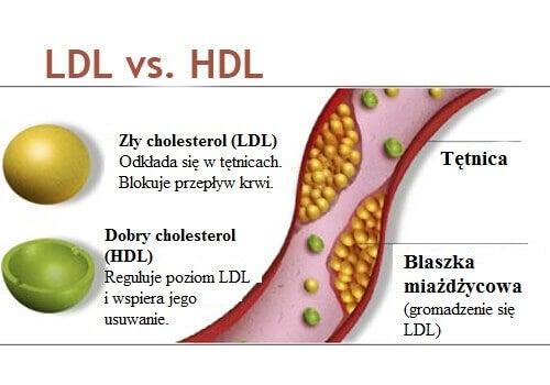 cholesterol a wątroba