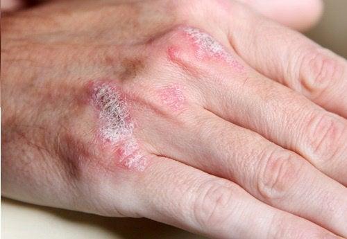 Choroby autoimmunologiczne – 5 rzeczy, które należy wiedzieć