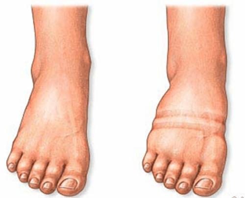 nadmiar wody w tkankach stopy