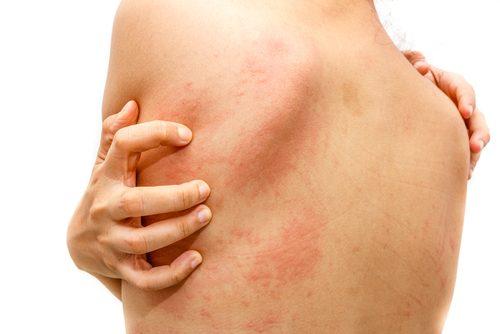 Pokrzywka na skórze – Jak leczyć ją w domu?