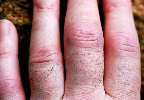 Reumatoidalne zapalenie stawów i jego objawy