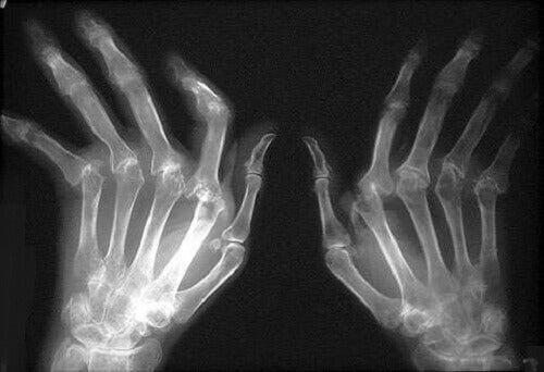 Reumatoidalne zapalenie stawów - leczenie