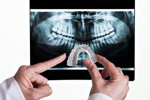 rentgen i wkładka do zębów
