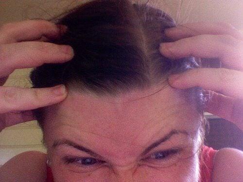 Uporczywe swędzenie głowy