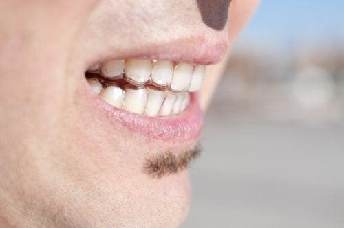 wkładka na zęby - bruksizm
