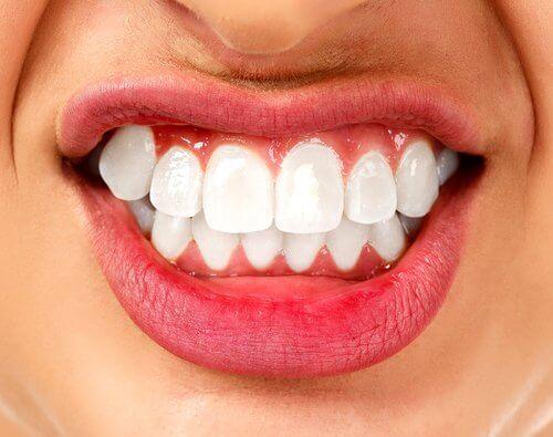 zęby - bruksizm