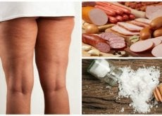 Cellulit - produkty, których należy unikać
