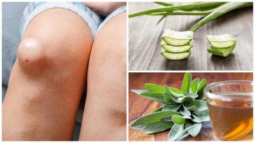 Stan zapalny kolan – 5 naturalnych remediów