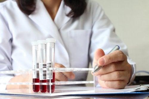 Laboratoryjna analiza krwi