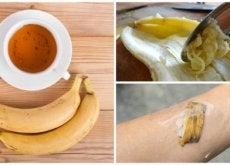 Skórka banana i jej zastosowania