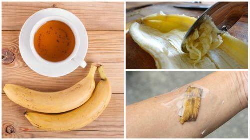 Skórka banana – 5 niecodziennych sposobów na jej wykorzystanie