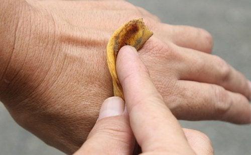 Skórka banana na brodawki