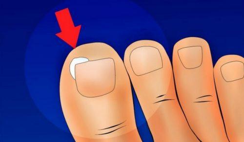 Wrastające paznokcie – w jaki sposób tego unikać