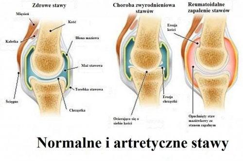Zapalenie stawów, zwyrodnienia i osteoporoza – różnice