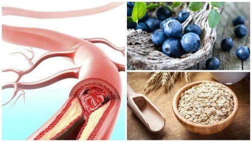 Zdrowe tętnice dzięki tym 9 produktom!