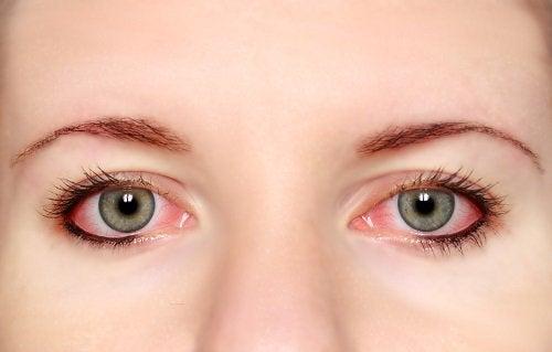 Zapalenie spojówek wywołane przez suchość oczu