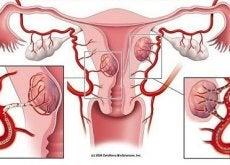 Mięśniaki macicy