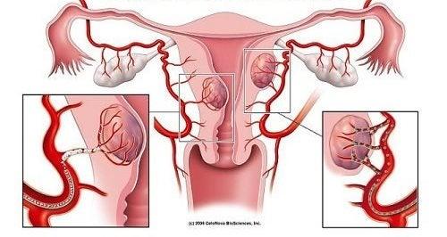 Mięśniaki macicy – poznaj ich najczęstsze objawy