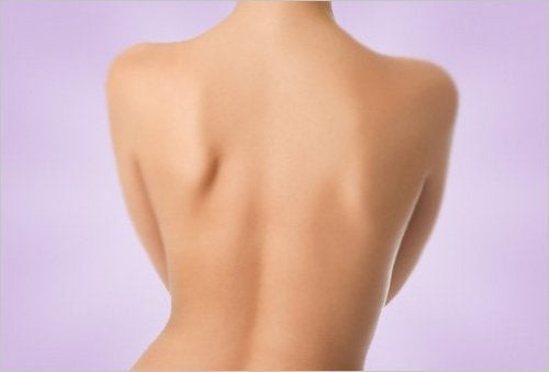 Jak pozbyć się bólu pleców kobieta - plecy skolioza